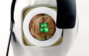 Врачи готовятся к имплантации человеку первого в мире бионического глаза