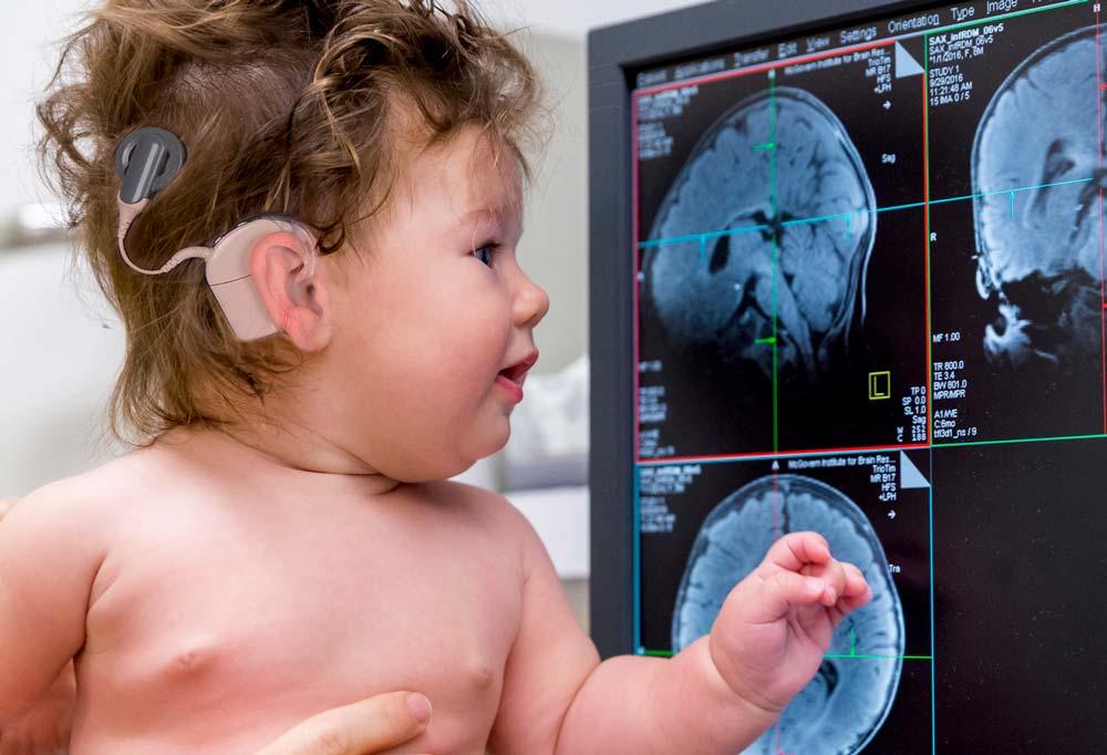МРТ с кохлеарным имплантом – велик ли риск?