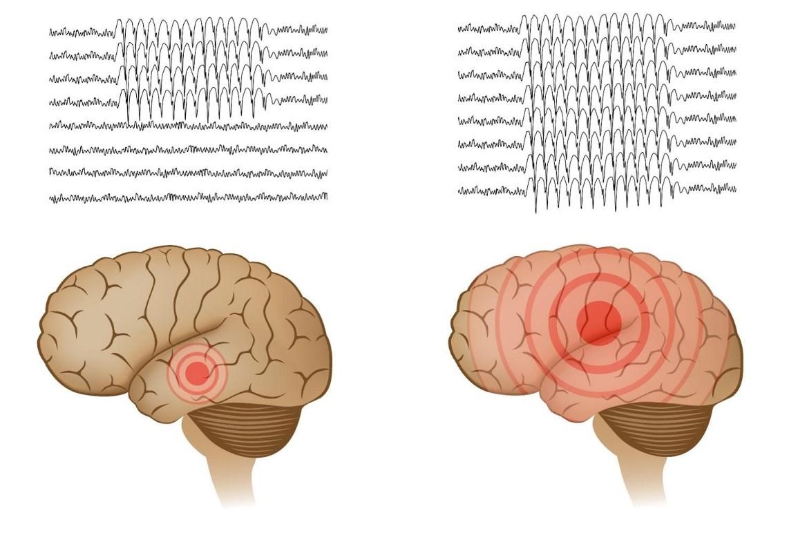 Активация лишь одного гена эффективно подавляет эпилепсию